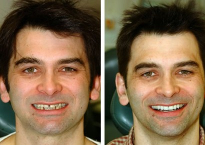 Smile makeover patient 6