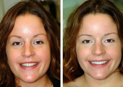 Smile makeover patient 7