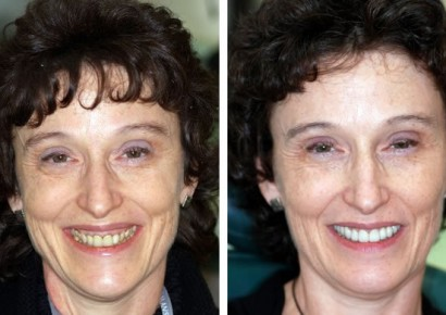 Smile makeover patient 9