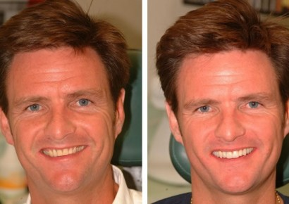 Smile makeover patient 8