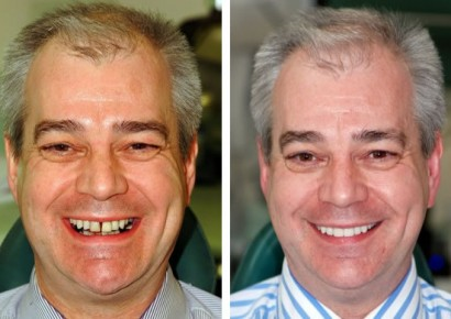 Smile makeover patient 2