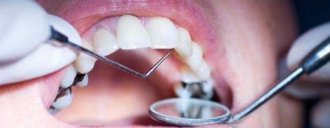 regular dental check ups