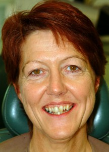 Crooked teeth before smile makeover